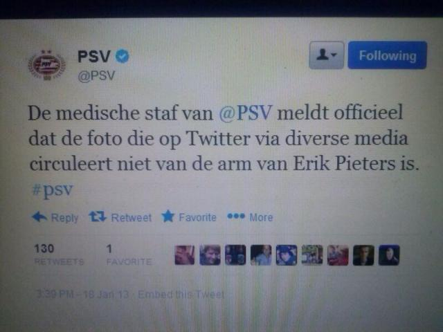 Niet de arm van Pieters